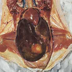 Liver of a pigeon showing a trichomonas focus
